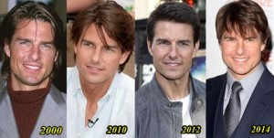 Tom-Cruise-Plastic-Surgery