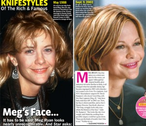 meg-ryan-plastic-surgery-disaster